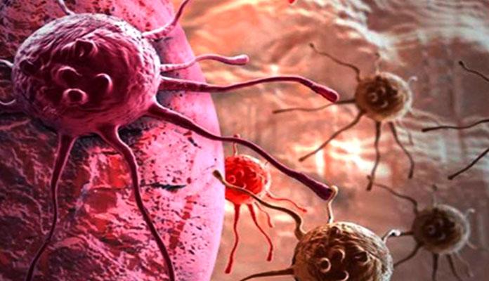 Kanser Nasıl Tedavi Edilir?