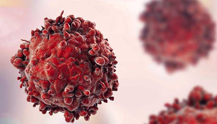 Kan Kanseri İle Nasıl Savaşabileceğinizi Biliyor Musunuz?