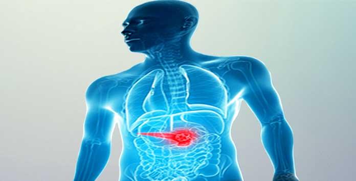 Pankreas Kanseri Yaşam Süresi