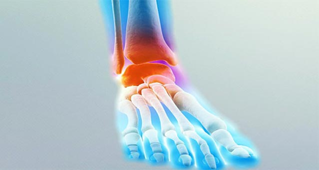 Ayak Bileği Ağrısı Nasıl Geçer?